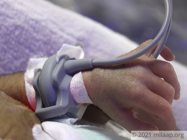 12 days old baby needs your help to survive