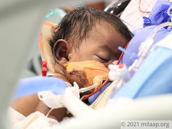 Despite Working Hard, Daily Wager Can't Save Baby From Heart Disease