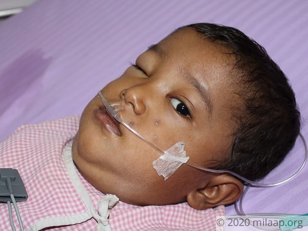 3-Year-Old Will Suffocate To Death If His Chest Tumor Is Not Removed