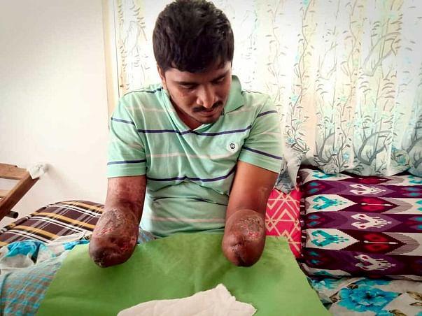 Help Vivek Get Back At Life!