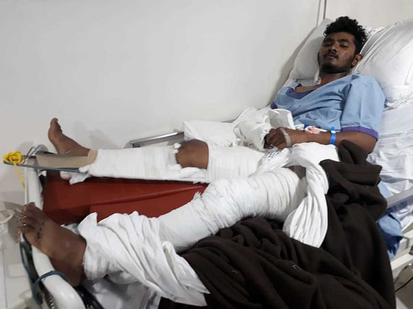Help Karan For Surgery And Multiple Fracture
