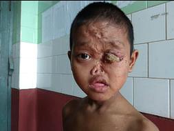 Help Niublusan Fight Against  Severe Congenital Syphilis