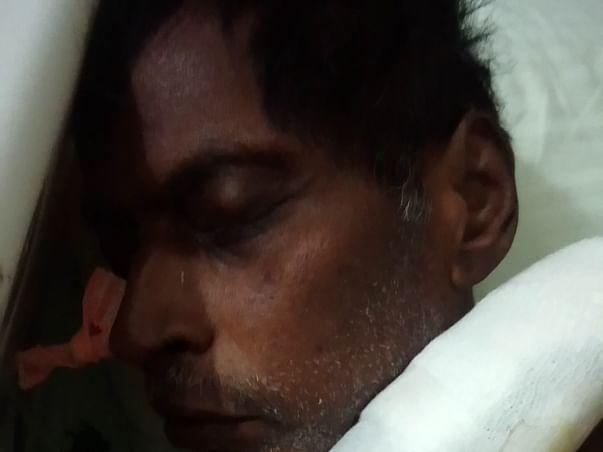 Help My Dad Undergo A Liver Transplant