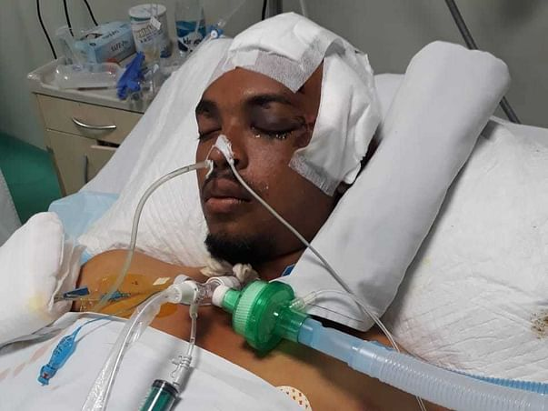 Help My Brother, Javeeth, Recover from Severe Injuries