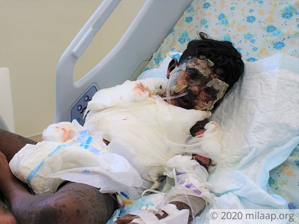 Skin Disease Has Ravaged This Boy's Face And Body, Needs Urgent Help