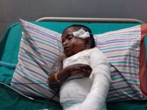 Help Baby Paerarasi Fight MRSA Septecemia Due To Burns
