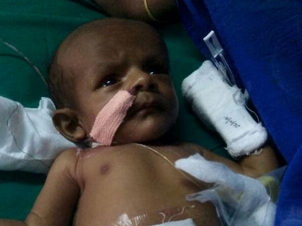 Help My Baby Undergo Liver Transplantation