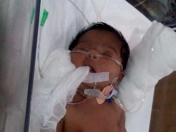 Samuel Health Issue - 4 months 1 day old kid