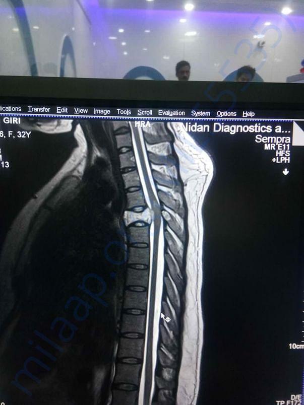 MRI scan report