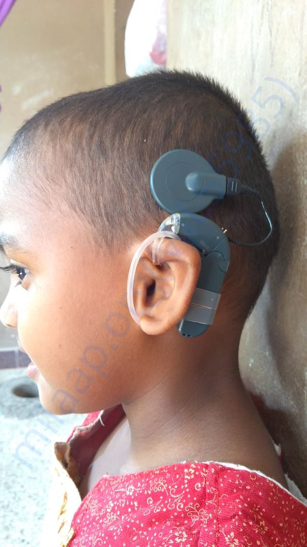 Cochlear Implantation in her left ear