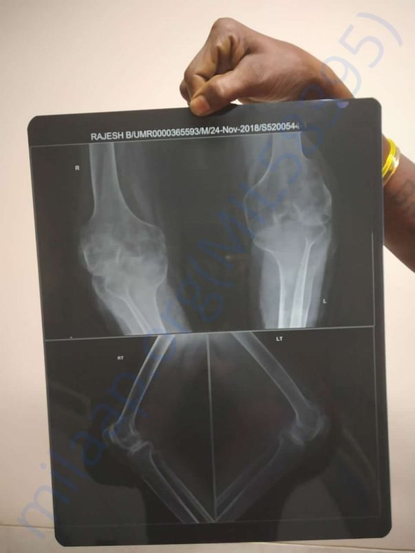 Legs Xray. He was unable to straighten the legs.