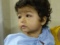Help 2-year-Old Shraddha Fight Nephrotic Syndrome