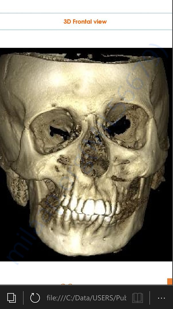 3D Frontal view of face