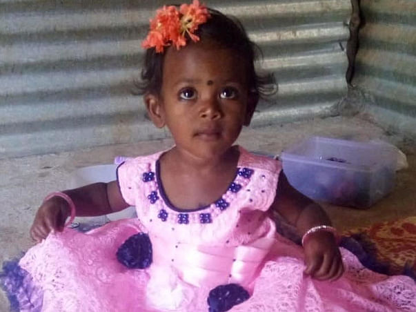 Baby Girl's Body Is Completely Burnt After Falling In Boiling Water