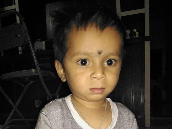 Help My Son Undergo Surgery for Cochlear Implantation