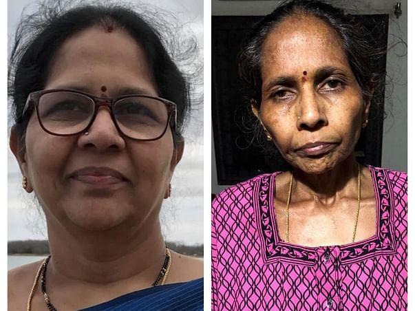 Help My Mother Under Go Liver Transplantation