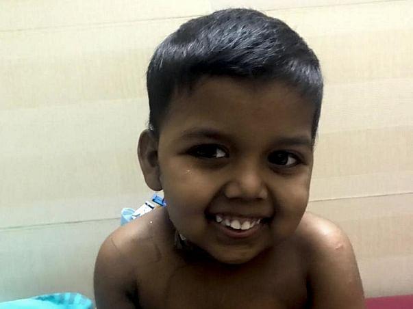 Help Jefin Undergo Liver Transplant