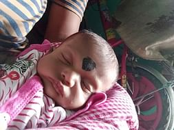 Help Bhaskar Baby's Undergo A Heart Operation
