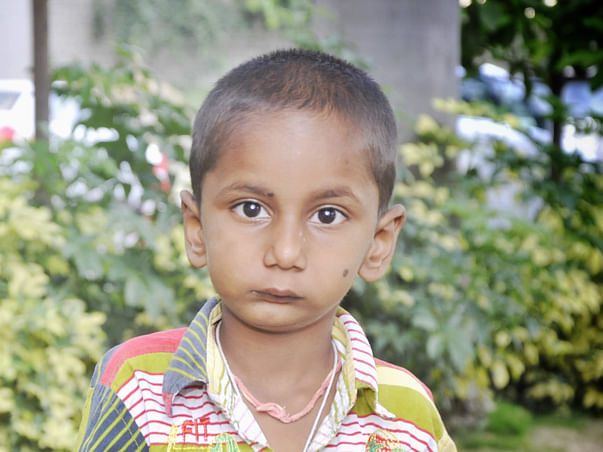 Auto Driver's 4-Year-Old Who Can't Even Open His Mouth Needs Surgery