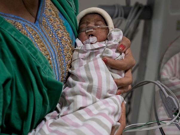 Baby of Mitali Sahoo needs your help