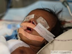 Baby of Manjula needs your help to survive
