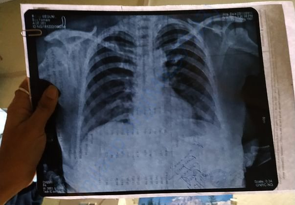 Chest X-ray also done