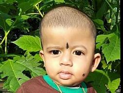 Baby Athira needs Craniosynostosis Treatment. Please help!