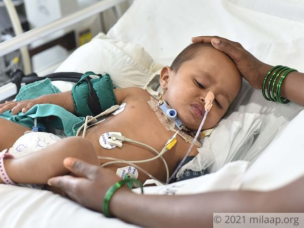 Tejas Can't Breathe Due To A Rare Disease, He Needs Treatment