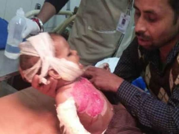 URGENT HELP FOR BABY RITU WITH SEVERE BURN INJURIES