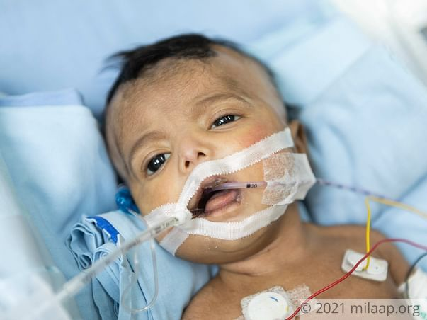 Baby of D.Lakshmi needs your help to survive