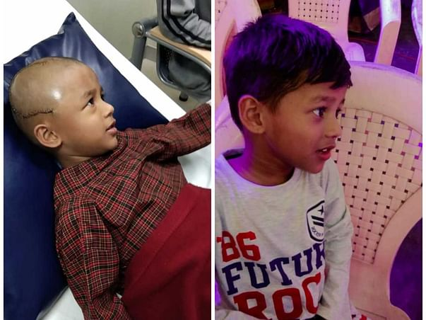 Help 5-year-old Jaidev Fight Brain Tumour