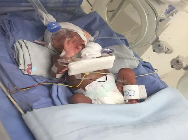 Help my Premature Baby (in ICU since his birth)