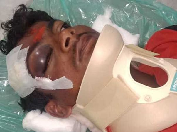 Help Muthuvel Recover from Severe Injuries