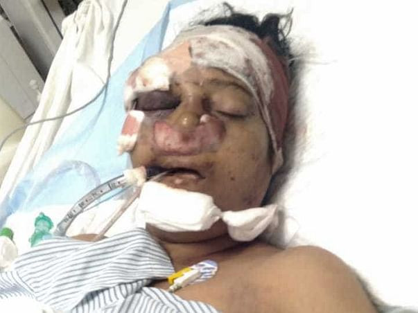 Help Ajantha Recover from Severe Injuries