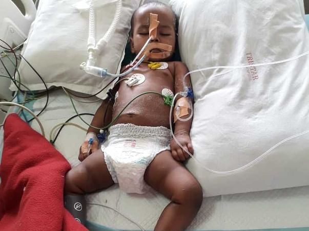 Help 1-year-old Kirti Fight Pneumonia