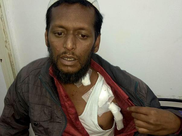 Help Zaheeruddin Undergo Fistula Surgery