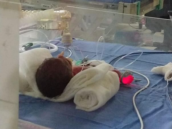 Help Anamika Save Her Premature Daughter