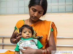 Baby of Sarojini Biliary Atresia with Chronic Liver Disease