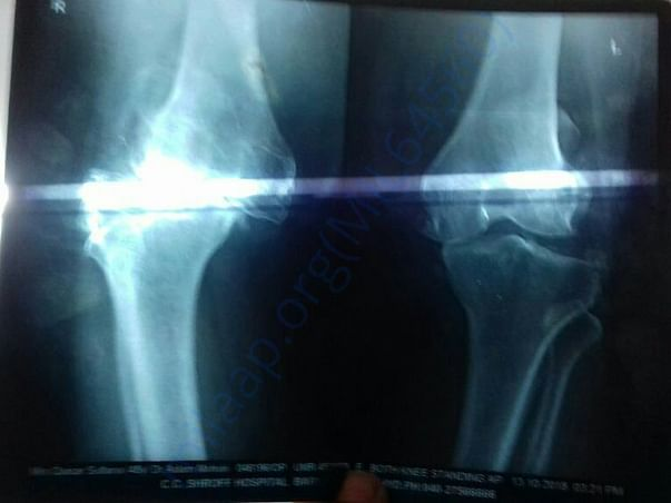 X ray of both knees