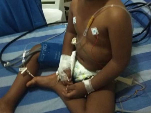 Help 3-year-old Asad Get Treated