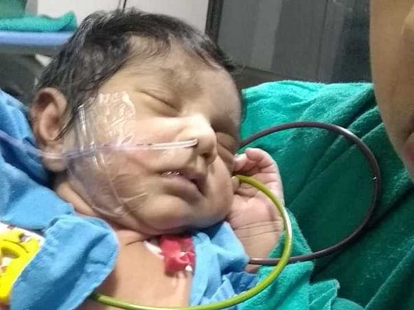 Help My 2 Month Old Baby Undergo Heart Operation