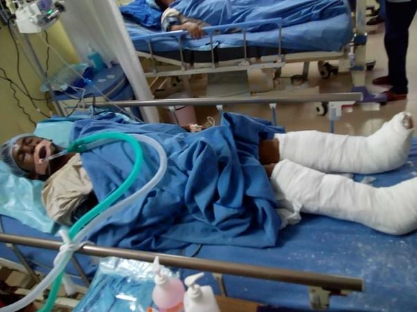 Lying on hospital bed lifeless in coma with both his legs broken