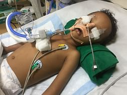 Help 3 Year Old Asad Open His Eyes