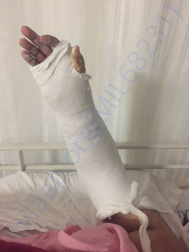 Left hand plaster for support after operation