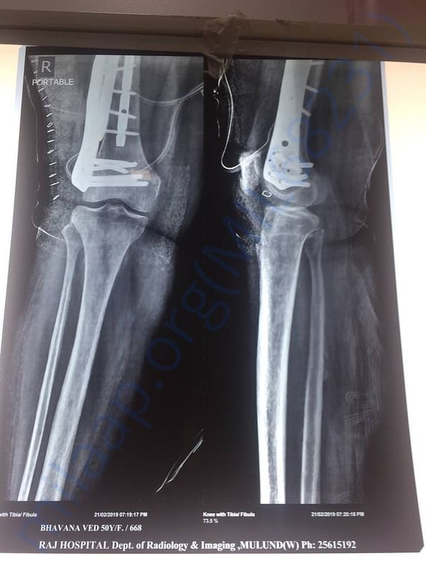 Right leg after operation xray