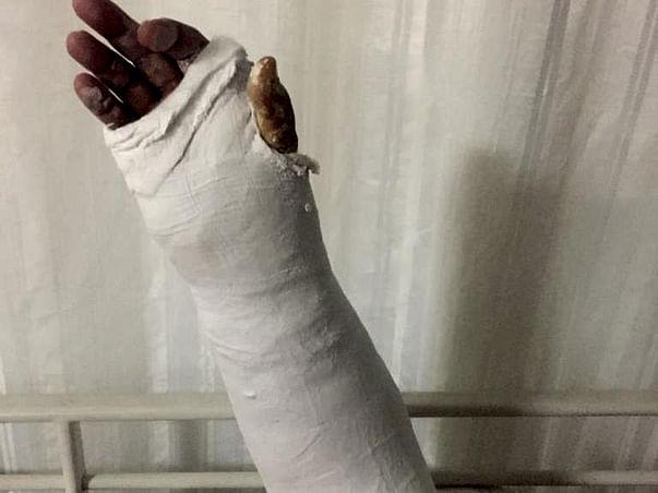 Help Bhavvana Fight Rigorous Osteoporosis