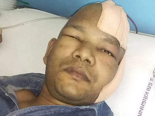 Help My Brother To Recover From Brain Haemorrhage
