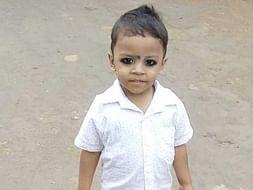 Help Baby Jagdish Undergo Cochlear Implantation Surgery