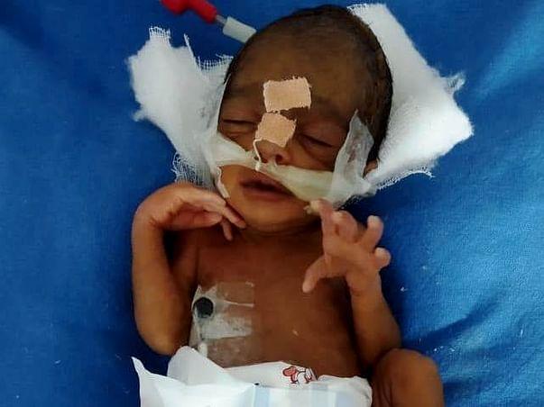 Help Baby Of Rachana Who Was Preterm (30 weeks)
