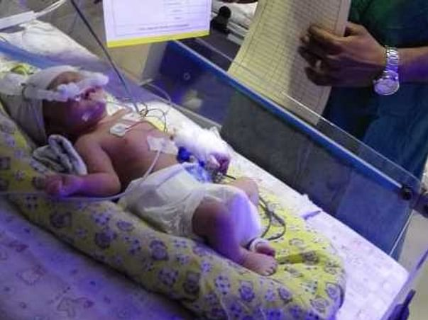 Help Baby of Anusha To Fight And Be With Her Parents